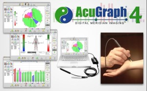 AcuGraph pic
